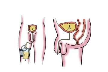 Catheter in bladder
